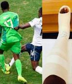 Böyle ayak kırdı sarı kartla yırttı