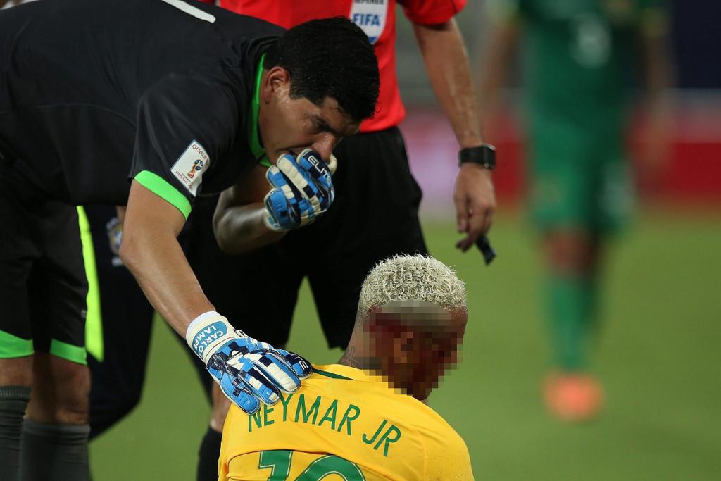 Neymar ölümden döndü